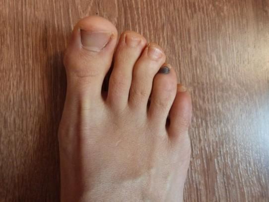 engourdissements des pieds