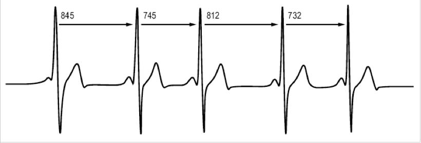 graphique variabilité fréquence cardiaque